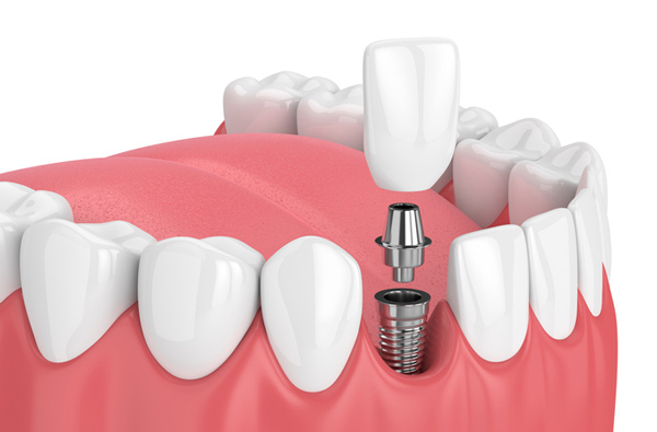 Rendering of jaw with dental implant from Elite Dental of Natick in Natick, MA