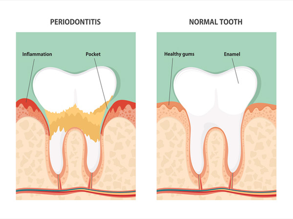 Diagram of gum disease or periodontitis compared to healthy tooth