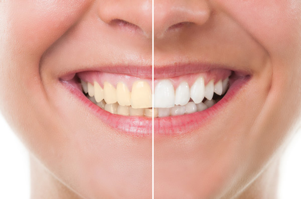 Before and after photo of teeth whitening treatment from Dr. Bethany Polnar